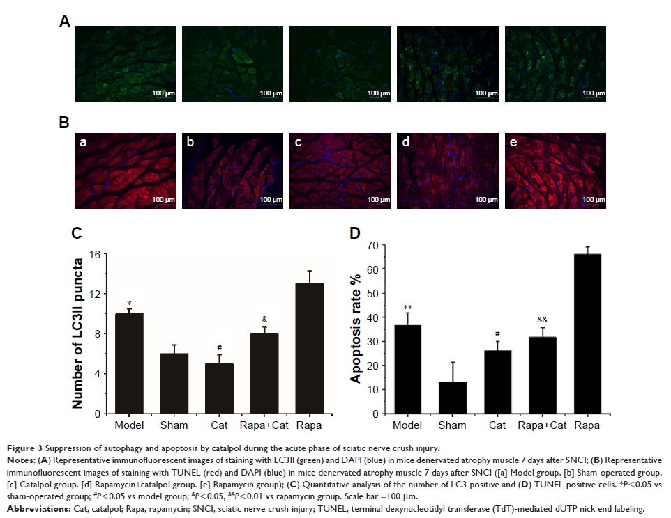 Figure 3 Suppression of autophagy and apoptosis by...